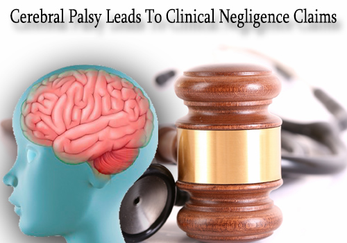 cerebral palsy leads to clinical negligence claims
